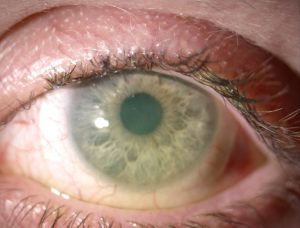 dry-eye-under-scleral