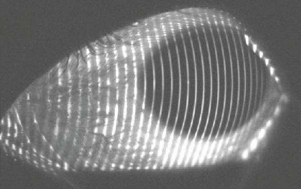 Evolution of Scleral Lens Fitting