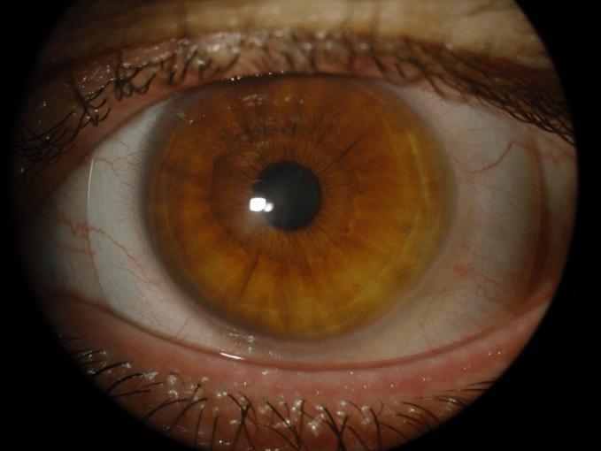 Scleral Lens for Keratoconus