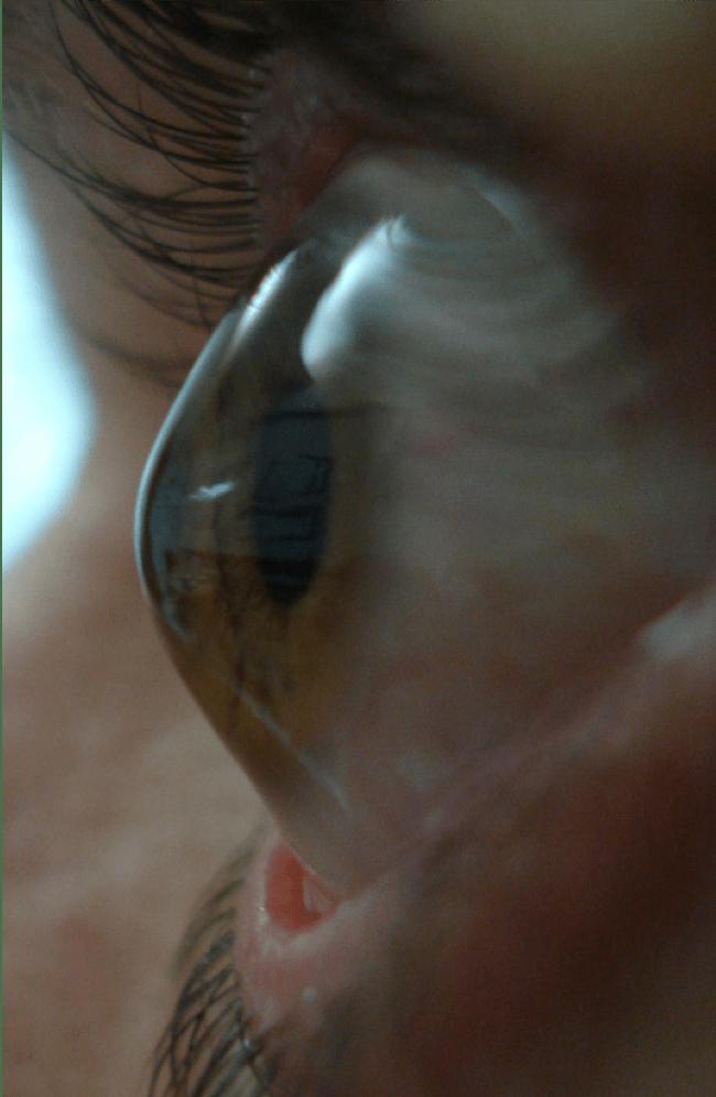 Keratoconus Anterior eye OS profile