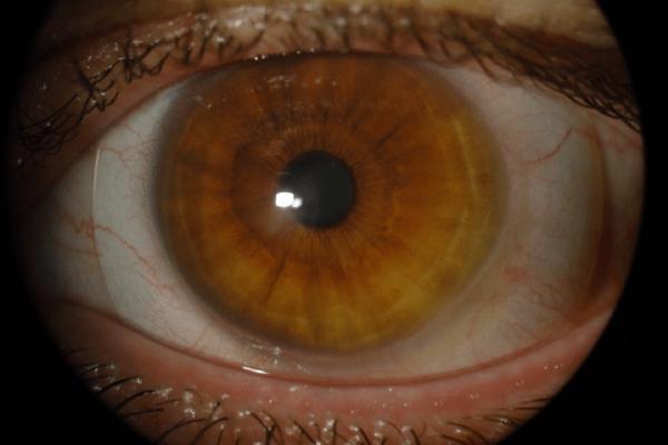 Keratoconus-Scleral-Lenses