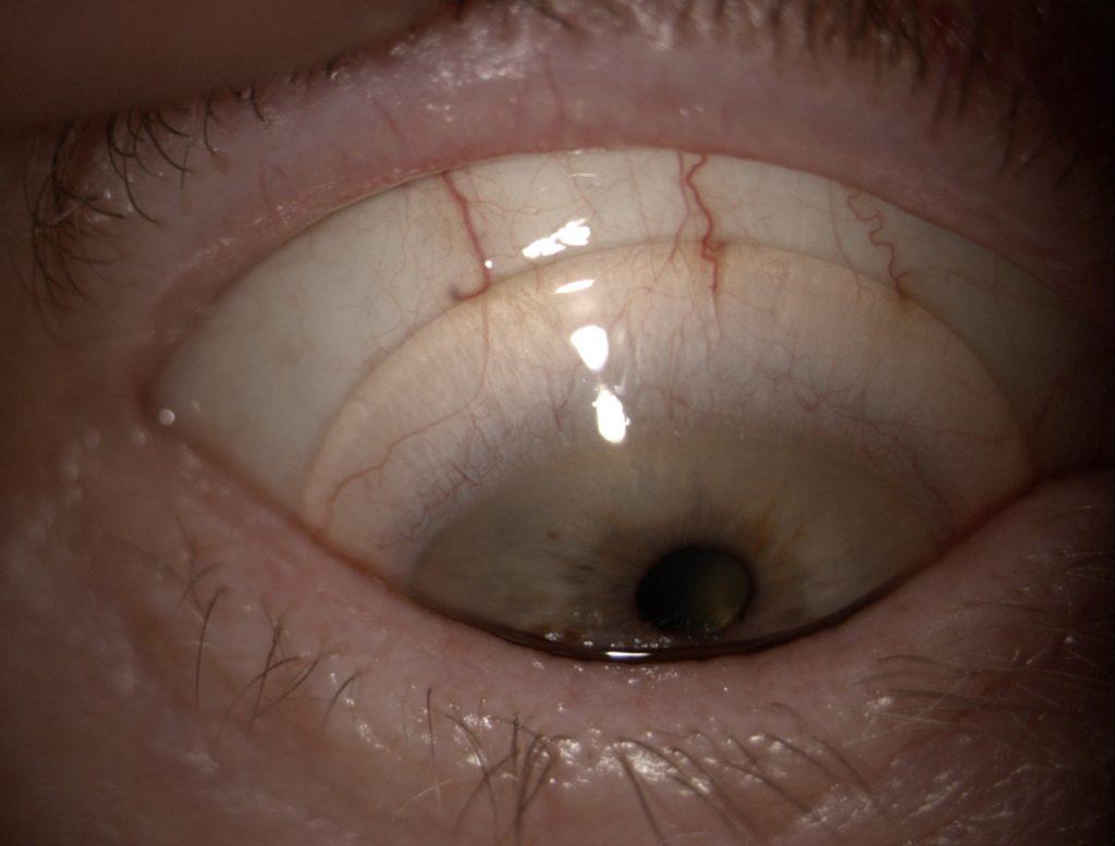 Dry Eye and Scleral Lenses in Optimum