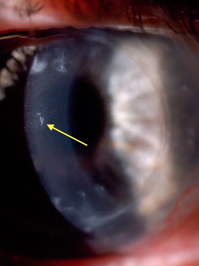 Small lesion in the centre of the cornea