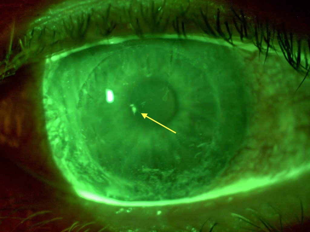 Blunt Trauma with Scleral Lens