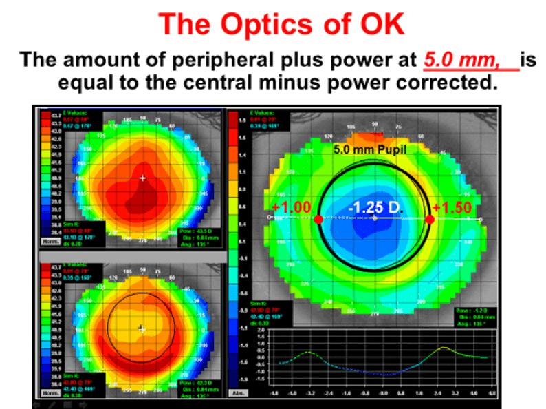 orthokeratology for soft lens dryness