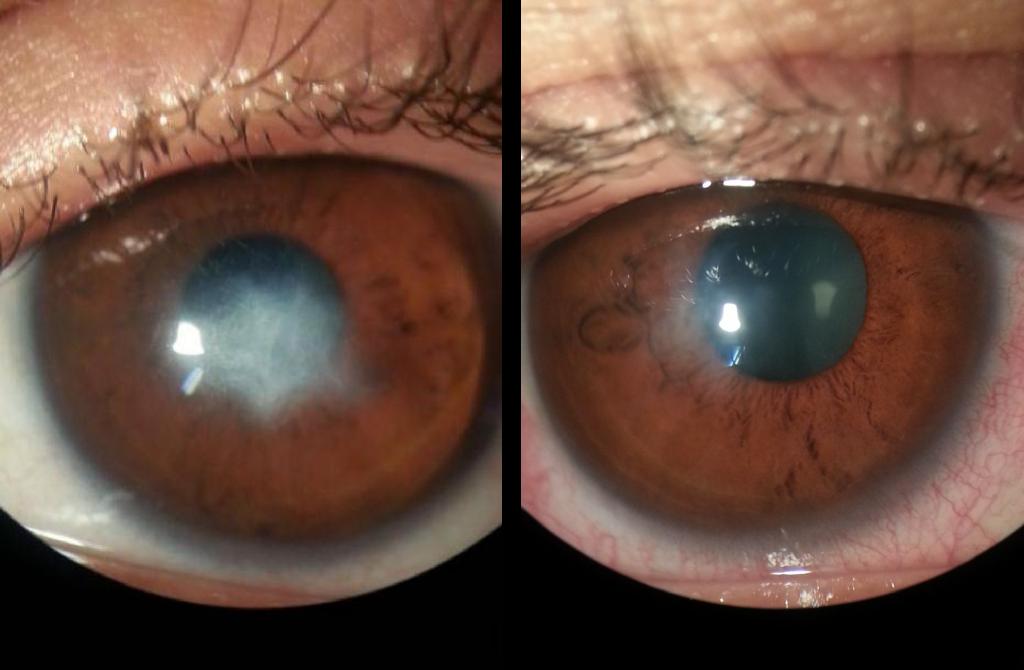 Abceso corneal con queratocono agudo