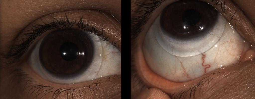 Keratoconus and Scleral Lenses