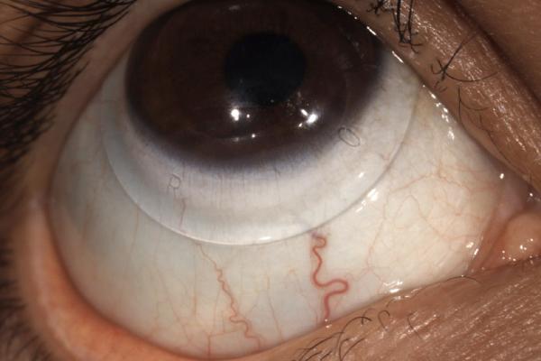 keratoconus scleral lens