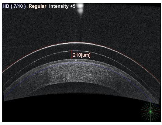 Reverse Geometry Scleral Lenses