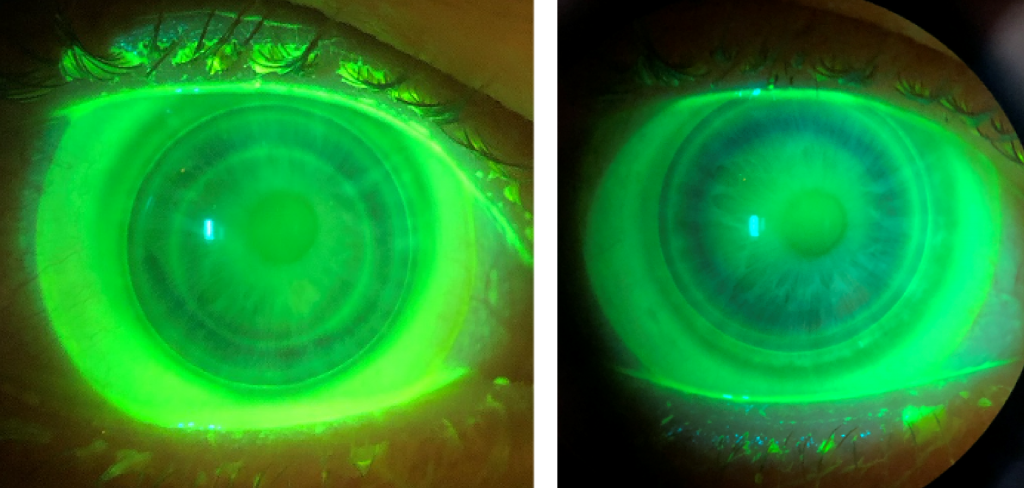 Keratoconus Hybrid Lens