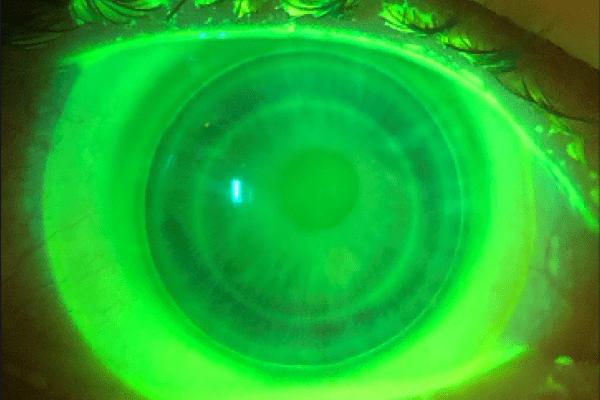 Hybrid Lens Keratoconus