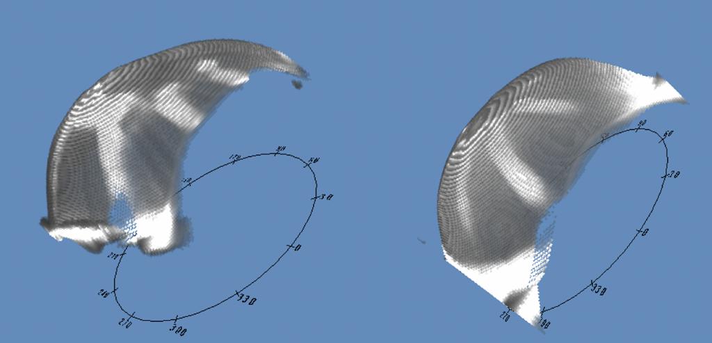 3D Corneal Model images from Pentacam