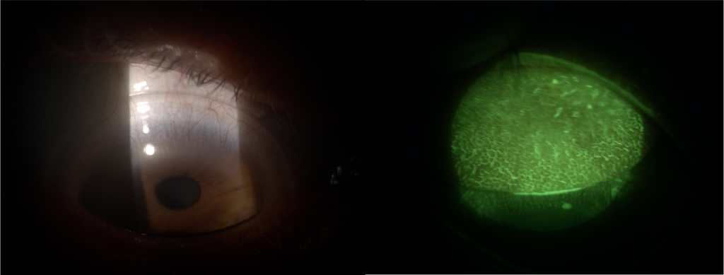 GP Contact Lens Care