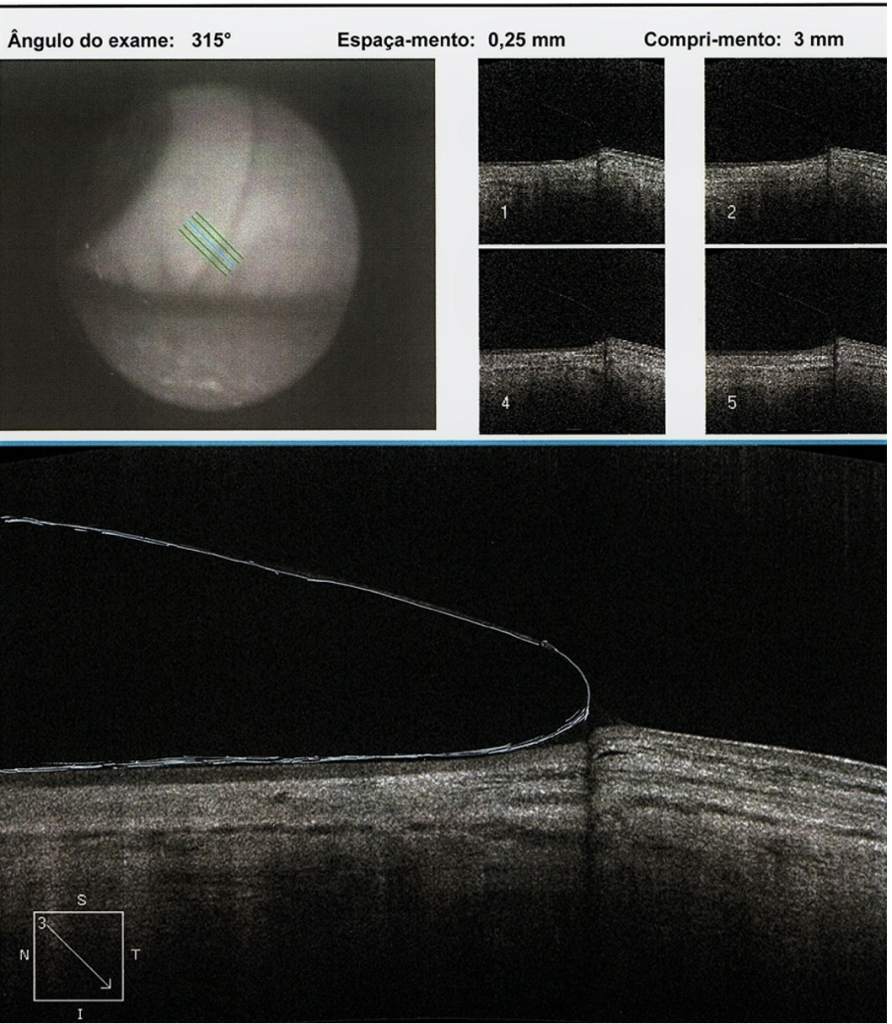 Scleral Lens Post-Refractive Keratotomy