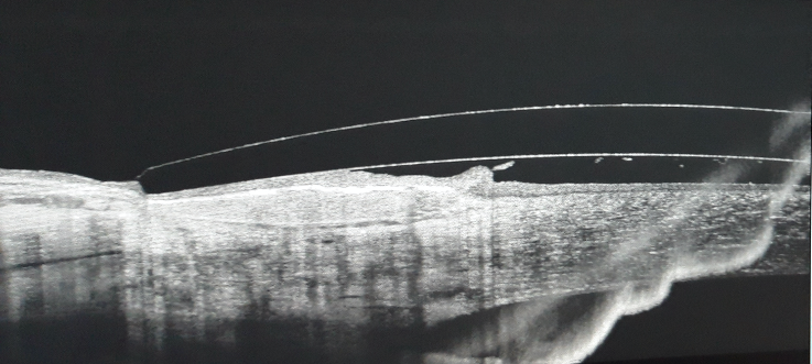 Multifocal Corneo-Scleral Lens